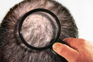 Haarausfall -  Hair loss